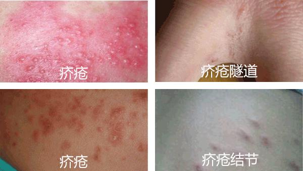 疥疮的症状表现有哪些?怎么治疗?
