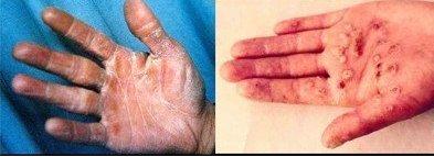 手足癣的治疗方法
