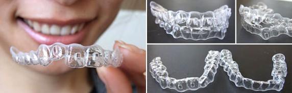 你知道牙齿护理有哪些吗,兰州牙科医院,兰州惠安齿科