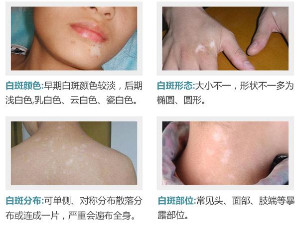 专家揭秘:冯小刚白斑病到底咋治好的?