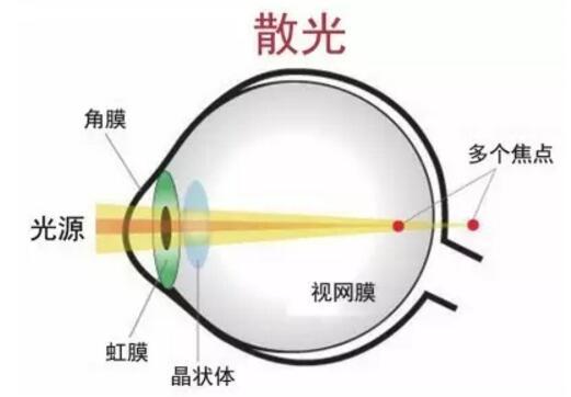 散光眼治疗.jpg