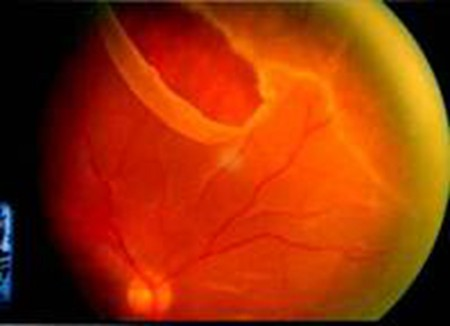 视网膜裂孔.jpg