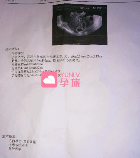 用户自述 1男胚1女胚闯天下,赴泰喜提龙凤胎!