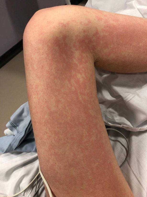 0_im-allergic-to-571971.jpg